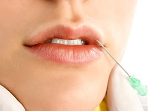 how to get rid of fine lines around your mouth